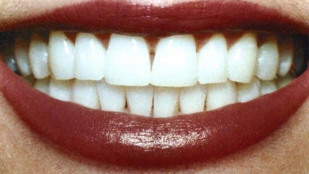 Как отбелить зубы